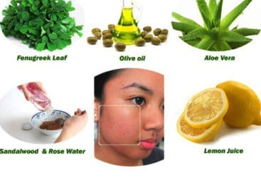 The fast home remedies for acne scars