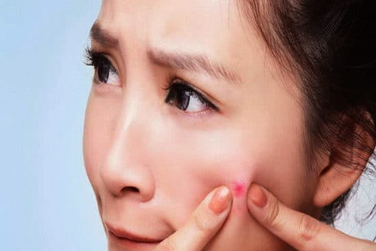 The fast treatment of pimple on the skin
