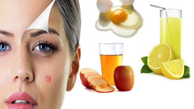 The fast ways to get rid of pimples overnight