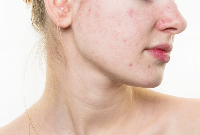 what causes cystic acne