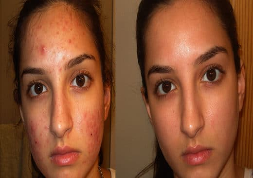 Get Rid of Acne Treatment Reviews For Good