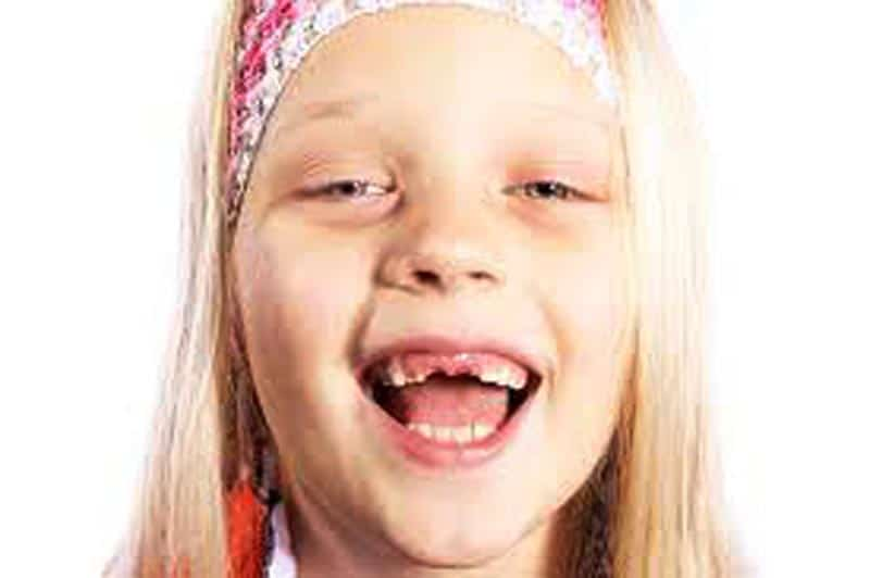 Teething molars how long does it last