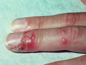 Herpetic whitlow Treatment