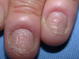 Paronychia Treatment
