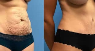 How Much Does a Tummy Tuck Price as well as Liposuction