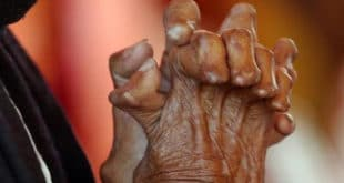 Leprosy is a chronic, progressive bacterial infection caused by the bacterium Mycobacterium leprae. It primarily affects the nerves of the